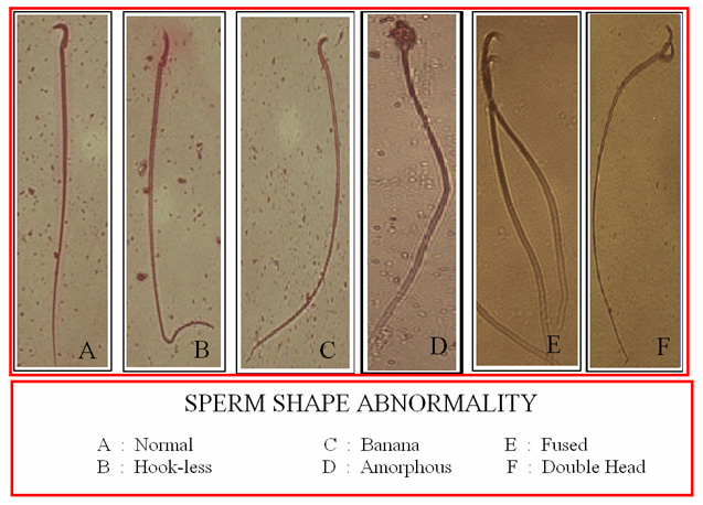 Sperm Shape Abnormalities Mice
