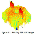 Figure 32:BHPF of FFT MRI image