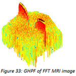 Figure 33: GHPF of FFT MRI image