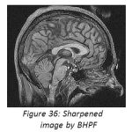 Figure 36: Sharpened image by BHPF