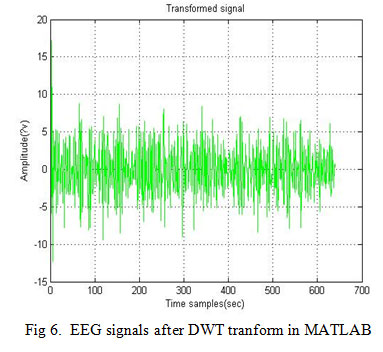 Denoising of EEG signals using Discrete Wavelet Transform
