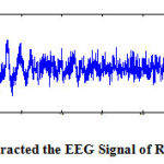 Figure 2.2 : Extracted the EEG Signal of ROC LOC