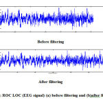 Figure 3: ROC LOC (EEG signal) (a) before filtering and (b)after filtering