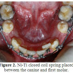 Figure 2: Ni-Ti closed coil spring placed between the canine and first molar.
