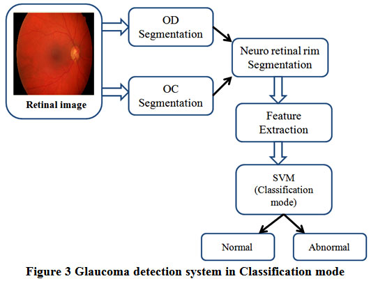 An Efficient Detection System for Screening Glaucoma in