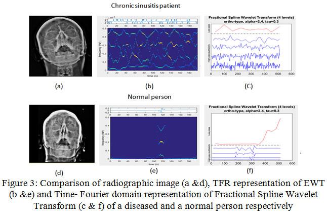 Diagnosing Sinusitis using Fractional B-Spline Wavelet With