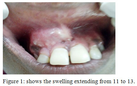 Lateral Periodontal Cyst A Case Report Biomedical And