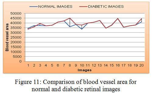 Diabetic Retinal Fundus Images: Preprocessing and Feature