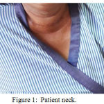 Figure 1: Patient neck.