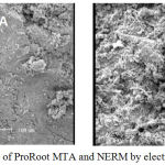 Figure 2: Microstructure of Pro Root MTA and NERM by electron microscopy (X 250).