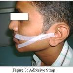 Figure 3: Adhesive Strap