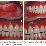 Figure 3: A: Jaw relation with occlusal rims; B: Trial denture – Frontal view; C: Trial denture – Right lateral; D: Trial denture – Left lateral