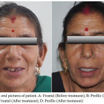 Figure 6: Extra oral pictures of patient. A: Frontal (Before treatment); B: Profile (Before treatment); C: Frontal (After treatment); D: Profile (After treatment)