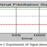 Figure 3: Experimental AF Signal (abnormal)