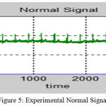 Figure 5: Experimental Normal Signal