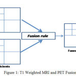 Figure 1: T1 Weighted MRI and PET Fusion