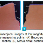 Figure 3: Microscopical images at low magnification showing the measuring points: (A) Bucco-palatal section. (B) Mesio-distal section.