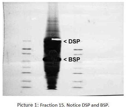 Non-Collagen Protein in the Dentin Tissue – the Role in the Process