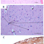 Figure 2: Photomicrographs of cerebral cortex from low dose Pb-treated mother rats showing A)