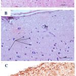 Figure 3: Photomicrographs of cerebral cortex from high dose Pb-treated mother rats showing A)