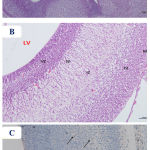 Figure 6: Photomicrographs of the fetal brain at GD20 from high dose Pb-treated group showing A)