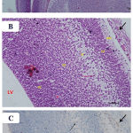 Figure 7: Photomicrographs of the fetal brain at GD20 from high dose Pb and Cur treated group showing: A)