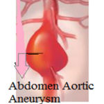 Figure 1: Abdominal Aortic Aneurysm occurring in human body