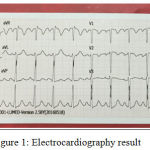 Figure 1: Electrocardiography result