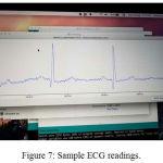 Figure 7: Sample ECG readings.