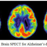 Figure 3.5: Brain SPECT for Alzheimer's disease [22]