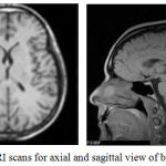 Figure 3.6: MRI scans for axial and sagittal view of brain (L-R) [26]