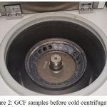 Figure 2: GCF samples before cold centrifugation.
