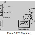 Figure 2: PPG Capturing.
