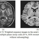 Figure 8: MRI T1 Weighted sequence images in the axial view acquired using multiple phase Array coils (N=4, SOS reconstruction without subsampling).
