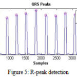 Figure 5: R-peak detection