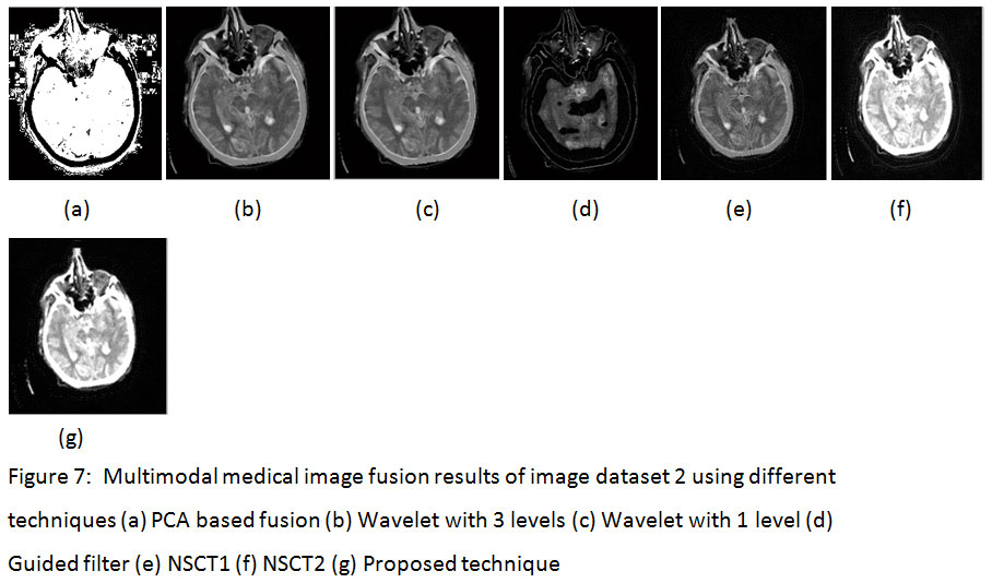 Multimodal Medical Image Fusion Using Guided Filter in NSCT