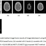 Figure 8: Multimodal medical image fusion results of image data base 3 using different techniques : (a) PCA based fusion, (b) wavelet with 3 levels (c) wavelet with 1 level (d) Guided filter with r=3,E=0.005 (e) NSCT1 (f) NSCT2 (g) proposed NSCT method.