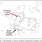 Figure 1: Mc Namara's Airway analysis and Hyoid Triangle Analysis.