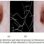 Figure 4: Hair detection and removal process (a) Dermoscopic RGB image (b) Strands of hair detected (c) The processed image.