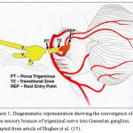 Figure 1: Diagrammatic representation showing the convergence of three sensory brances of trigeminal nerve into Gasserian ganglion. Adapted from article of Hughes et al. (15).