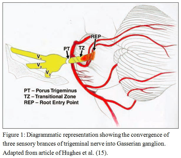 Role of Magnetic Resonance Imaging in Evaluation of Trigeminal