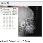 Figure 1: Digital tracing with Dolphin Imaging Software.